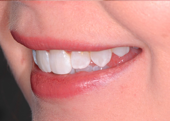 Invisalign Case 7 After