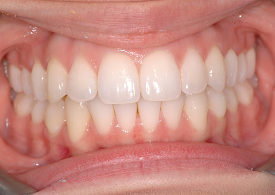 Invisalign Case 8 After